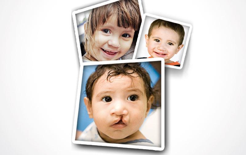 Dakhla: Operation Smile Morocco  du 27 mars au 4 avril