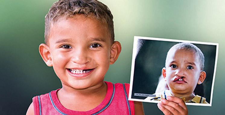 L'opération Smile du 24 novembre au 2 décembre à Safi  : Plus de 10.400 patients ont été opérés depuis 1999