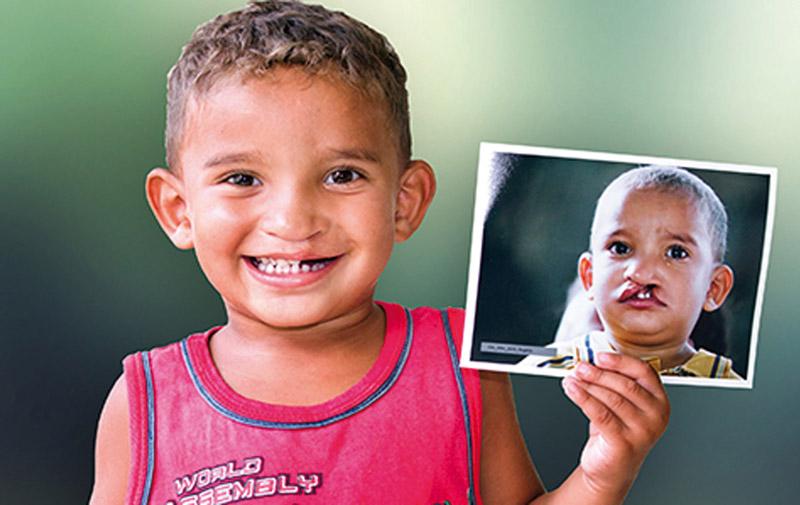 Opération Smile à El Jadida: Plus de 120 enfants retrouveront le sourire