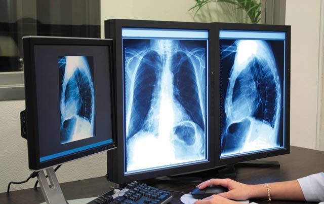 Tuberculose  : Casablanca enregistre 5.000 nouveaux cas annuellement