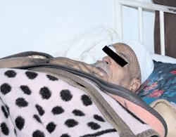 Alzheimer : Calvaire et chagrin