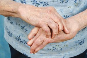 Polyarthrite rhumatoïde : entre la maladie et l'insouciance de l'Etat