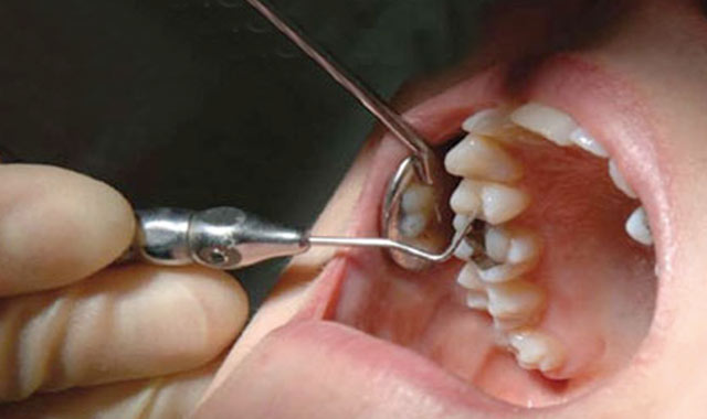 Mercure : Vers la fin des amalgames dentaires ?
