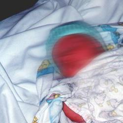 Un bébé victime d'une horreur médicale