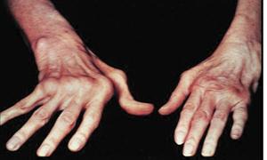 Polyarthrite : À quand une couverture médicale adéquate ?
