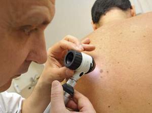 «Verisante Aura» : Un moyen plus rapide d'identifier le cancer de la peau