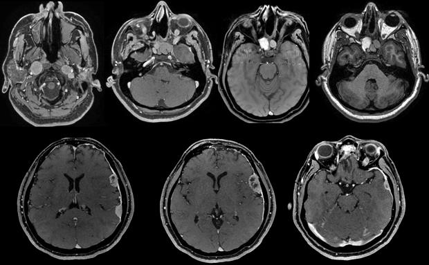 Les spécialistes francophones de la neuro-oncologie en conclave à Marrakech