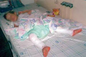 Un enfant brûlé dans des circonstances ambiguës