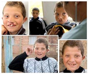 Opération Smile : Plus de 4.500 enfants retrouvent le sourire au Maroc