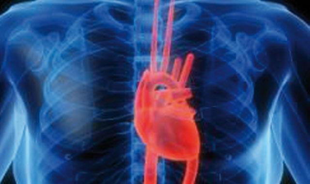 Santé : MSD Maroc s engage contre les maladies cardio-vasculaires