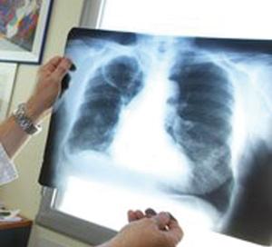 Un nouveau test diagnostiquant la tuberculose en moins de deux heures