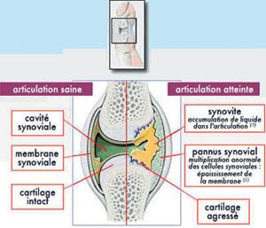 Santé : 150.000 Marocains atteints de la polyarthrite rhumatoïde