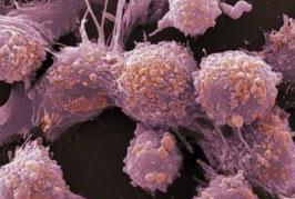 Cancérologie: Le 24è congrès national les 29 et 30 avril à Essaouira