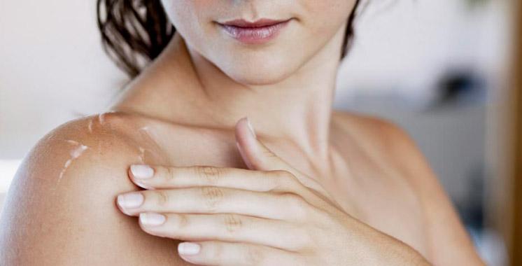 Maladie chronique de la peau : 750.000 Marocains touchés par le psoriasis