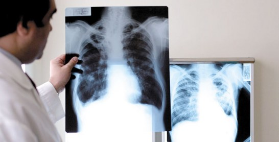 Lutte contre la tuberculose :  Pharma 5 sensibilise les patients et le personnel médical