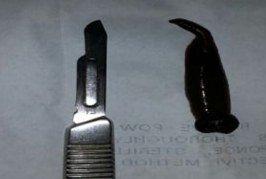 Casablanca : des médecins retirent une sangsue de 6 cm de la gorge d'une fillette