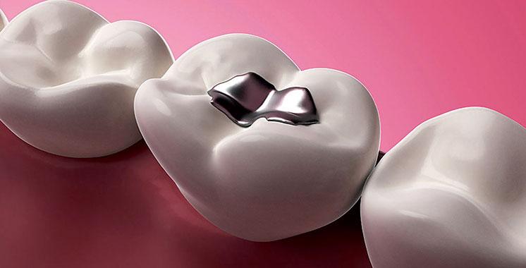 54% des dentistes utilisent toujours le plombage : Halte au mercure dentaire !