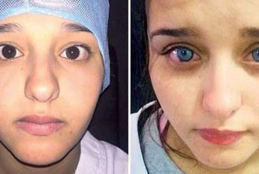 Changer la couleur de ses yeux à vie, c'est désormais possible !