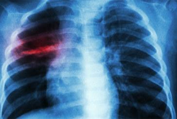 Anas Doukkali lance une vaste campagne de dépistage : Près de 31.000 cas de tuberculose au Maroc