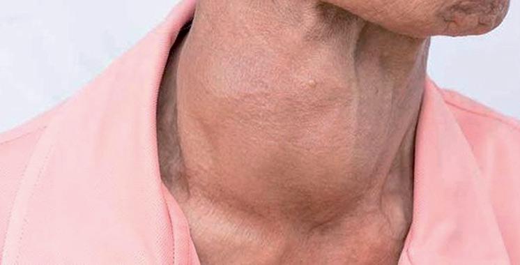 Maladies de la thyroïde : Un numéro vert pour les patients qui n'arrivent pas  à accéder au Lévothyrox