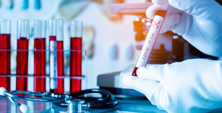 Covid-19: plus de 18.000 cas de contaminations et 292 décès au niveau national