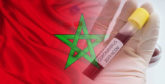 Covid-19 / Maroc : La situation épidémiologique au 26 septembre 18h